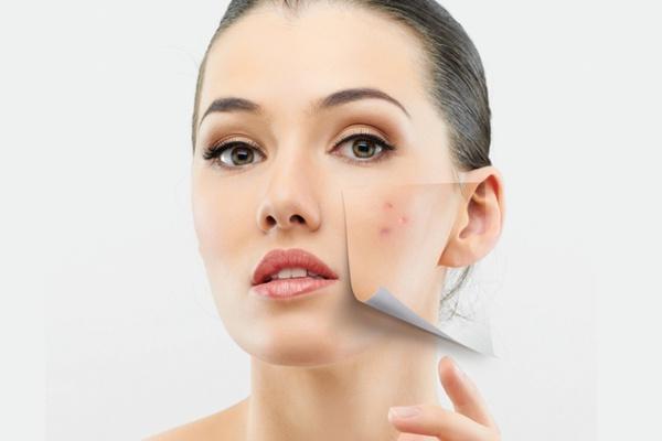 anti-acne-im